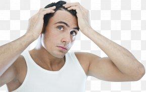 Hair - Management Of Hair Loss Hair Transplantation Hair Care PNG