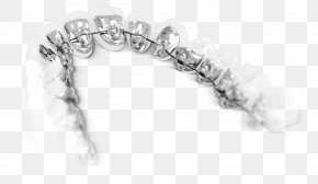Orthodontics - Lingual Braces Dental Braces Orthodontics Tongue Tooth PNG