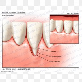 Health - Tooth Gums Gingival Recession Surgery Periodontal Disease PNG