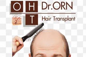 Hair - Management Of Hair Loss Hair Transplantation Platelet-rich Plasma Therapy PNG