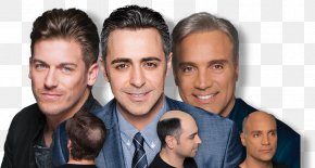 Male Pattern Baldness - Pattern Hair Loss HPIHair Partners Management Of Hair Loss PNG