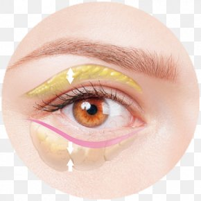 Double Eyelids - Face Eye Skin Enophthalmia Medicine PNG