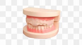 Braces Model Material - Tooth Dental Braces Cosmetic Dentistry PNG