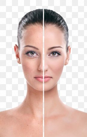White Contrast Beautiful Models - Rhytidectomy Eye Face Wrinkle Cream PNG