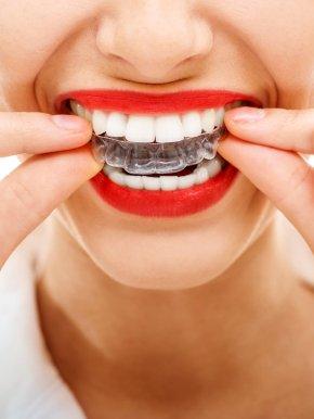 Teeth - Orthodontics Clear Aligners Dental Braces Retainer Dentistry PNG