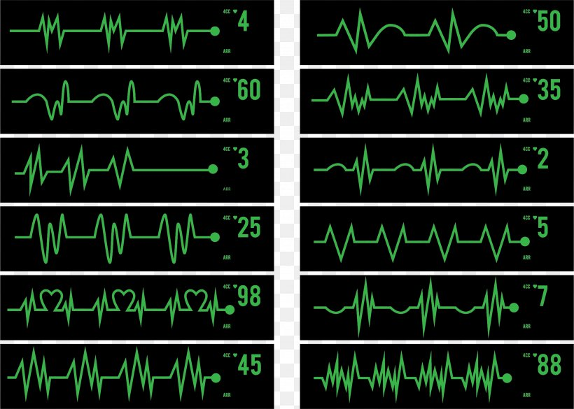 Electrocardiography Pulse Icon, PNG, 2300x1642px, Electrocardiography, Area, Cardiac Monitoring, Cardiac Muscle, Cardiology Download Free