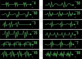 ECG Monitor, ECG Line - Electrocardiography Pulse Icon PNG
