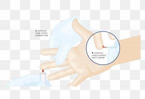 Blood Sample - Thumb Medical Glove Hand Model PNG