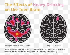 Brain - Brain Alcoholism Alcoholic Drink Alcohol And Health Binge Drinking PNG