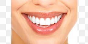 Smile - Cosmetic Dentistry Smile Human Tooth PNG
