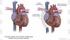 Medical Illustration Medicine Cardiology Atresia PNG