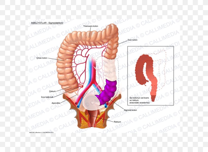 Colorectal Cancer Surgery Colon Png 600x600px Watercolor Cartoon Flower Frame Heart Download Free