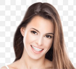 Braces - Dental Braces Clear Aligners Cosmetic Dentistry Orthodontics PNG