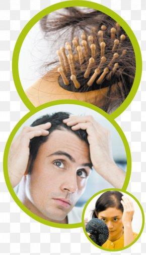 Hair Loss - Management Of Hair Loss Hair Transplantation Human Hair Growth PNG