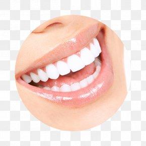 Cosmetic Dentistry - Tooth Whitening Human Tooth Dentistry Veneer PNG