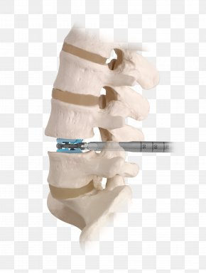 Polyaxial Screw Vertebral Column Spinal Fusion Surgery, PNG