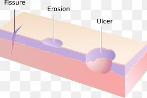 Fissure - Erosion Dermatology Cutaneous Condition Skin Ulcer Skin Fissure PNG