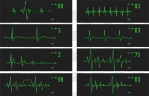 ECG Monitor Heartbeat Detection - Green Technology Angle Area Font PNG