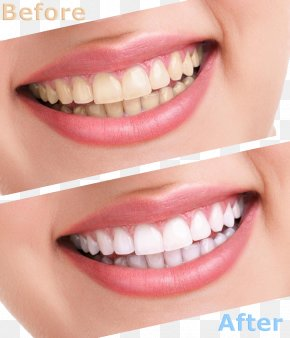 Comparison Of Cleaning Teeth - Tooth Whitening Human Tooth Cosmetic Dentistry PNG