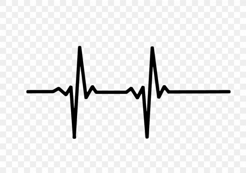 Heart Rate Monitor Pulse Electrocardiography, PNG, 1273x900px, Heart Rate, Black, Black And White, Blood, Blood Pressure Download Free