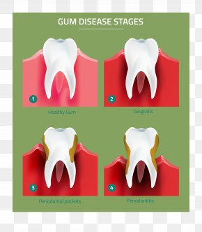 Health - Tooth Gums Periodontal Disease Gingivitis Periodontology PNG