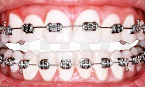 Perfect Teeth Cliparts - Dental Braces Dentistry Orthodontics Tooth Whitening PNG