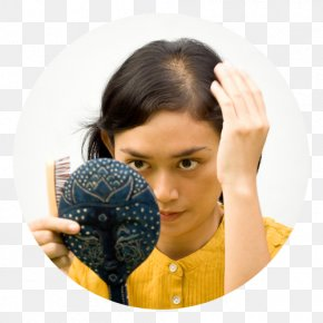 Hair Loss - Management Of Hair Loss Lotion Hair Care PNG