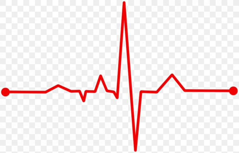 Heart Rate Monitor Electrocardiography Pulse Monitoring, PNG, 1000x641px, Heart Rate Monitor, Blood Pressure Monitors, Diagram, Electrocardiography, Health Download Free
