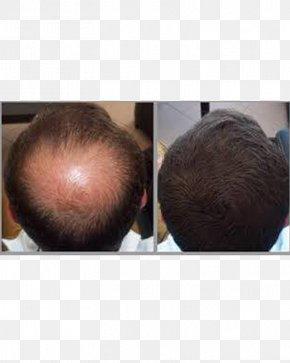 Hair - Management Of Hair Loss Hair Care Human Hair Growth PNG