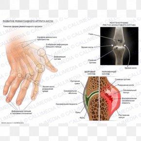 Hand Grave - Rheumatoid Arthritis Chronic Childhood Arthritis Disease Rheumatism PNG