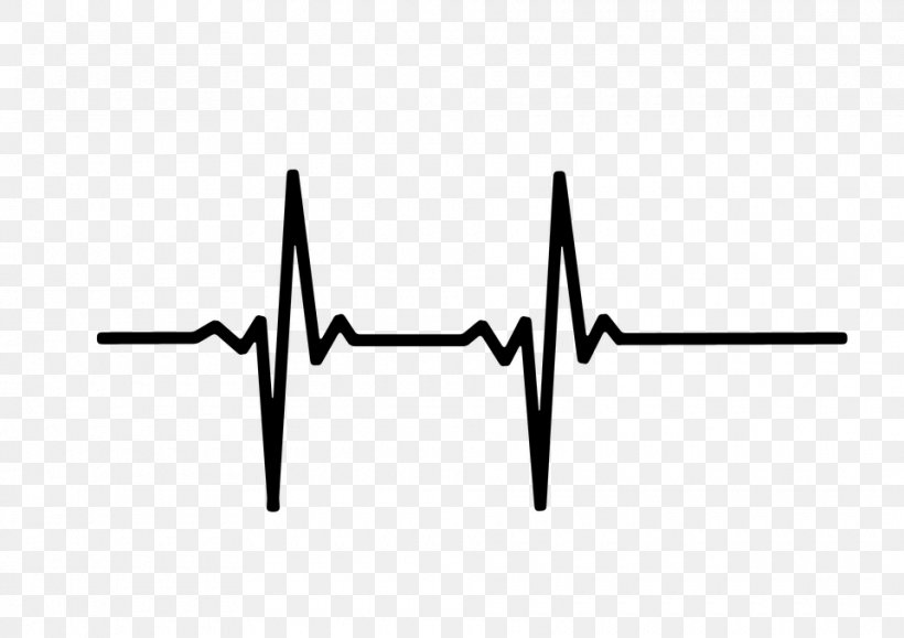 Pulse Heart Rate Monitor Clip Art, PNG, 960x678px, Pulse, Black, Black And White, Electrocardiography, Flatline Download Free