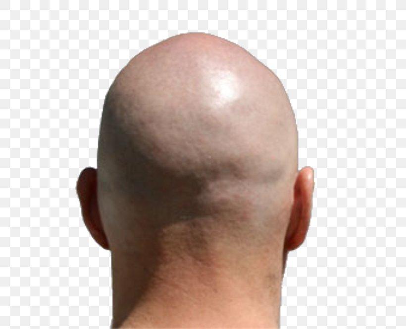 Go Nawaz Go Shaving Hair Loss Hairstyle, PNG, 666x666px, Shaving, Bangs, Beard, Beauty Parlour, Cheek Download Free