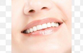 Teeth Model - Tooth Dentistry Mouth Dental Calculus Dental Braces PNG