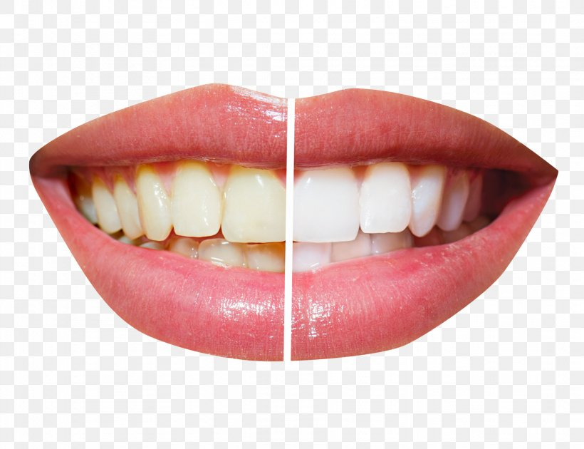 Cosmetic Dentistry Tooth Whitening, PNG, 1822x1400px, Dentistry, Clear Aligners, Cosmetic Dentistry, Crown, Dental Implant Download Free