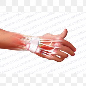 Hand - Hand Model Nail Rheumatoid Arthritis Disease PNG