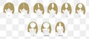 Hair - Pattern Hair Loss Hair Transplantation Management Of Hair Loss PNG