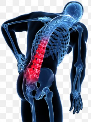 Back Pain - Low Back Pain Human Back Vertebral Column PNG