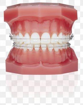Braces - Dental Braces Orthodontics Clear Aligners Lingual Braces Dentistry PNG