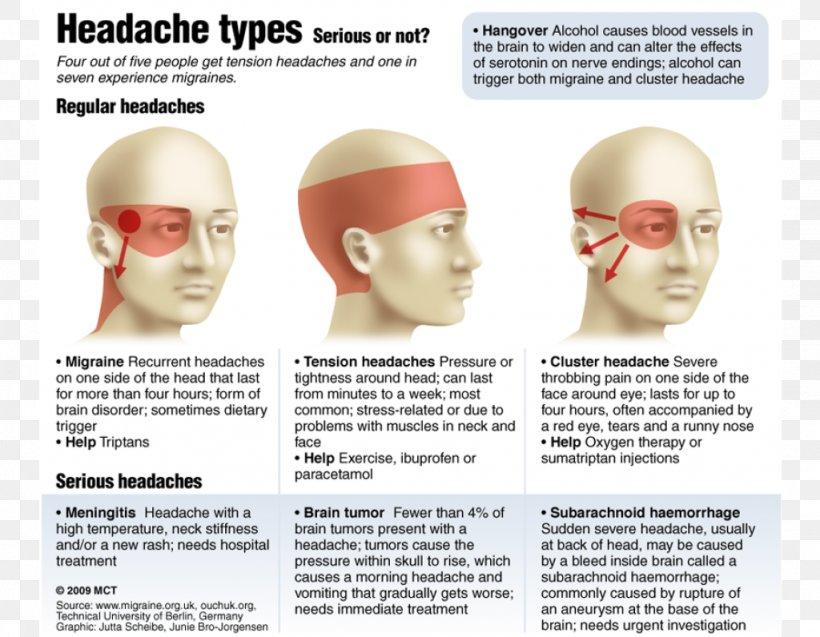 Headache Disease Eye, PNG, 1024x796px, Headache, Ache ...