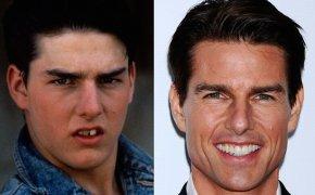 Tom Cruise - Tom Cruise Teeth Celebrity Dentistry Veneer PNG