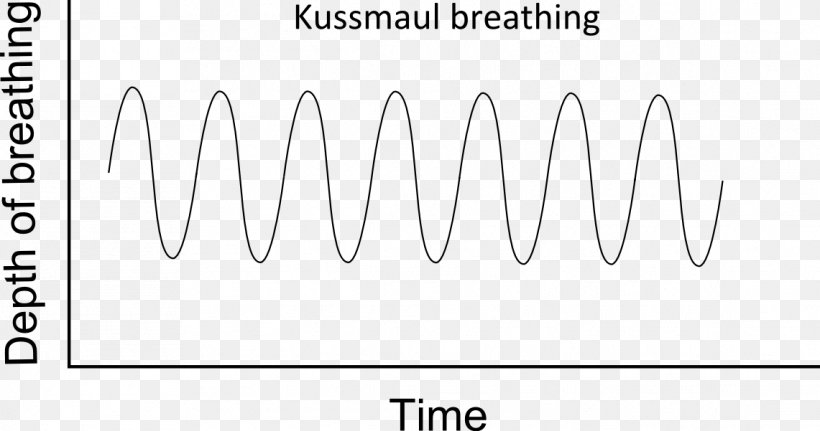 Kussmaul Breathing Kussmaul's Sign Respiration Respiratory System, PNG,  1141x601px, Breathing, Area, Black, Black And White, Brand