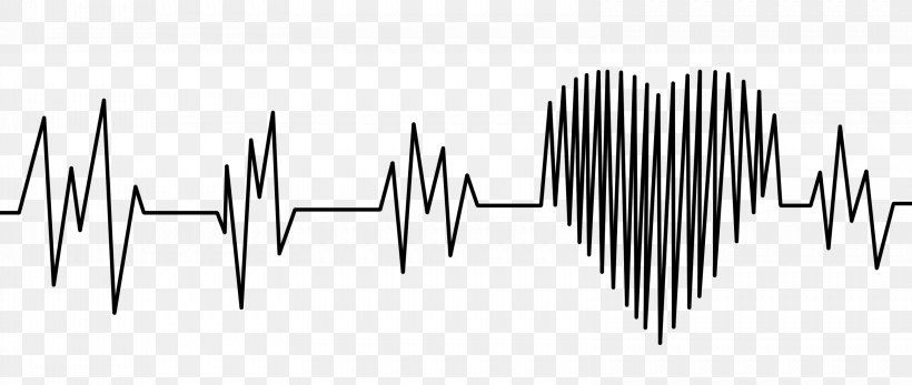 Electrocardiography Heart Rate Sinus Rhythm Pulse, PNG, 3157x1337px, Electrocardiography, Black And White, Blood Pressure, Cardiac Monitoring, Cardiology Download Free