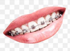 Teeth With Braces - Tooth Dental Braces Dentistry PNG