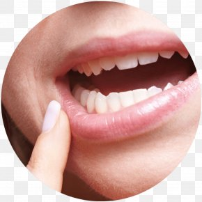 Chewing Gum - Aphthous Stomatitis Dentistry Mouth Ulcer Gums PNG
