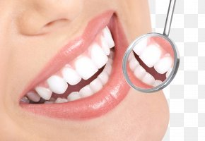 Dentist Smile HD - Tooth Whitening Tooth Decay Therapy Dentist PNG