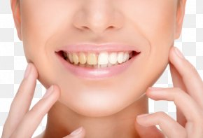 Teeth Whitening - Tooth Whitening Human Tooth Cosmetic Dentistry PNG