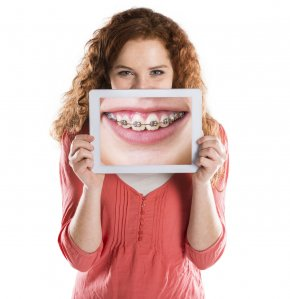 Teeth - Dental Braces Dentistry Orthodontics Clear Aligners PNG