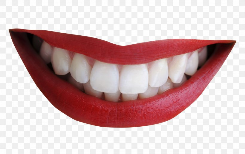 Smile Tooth Mouth, PNG, 2163x1369px, Smile, Dental Braces, Human Tooth, Jaw, Lip Download Free