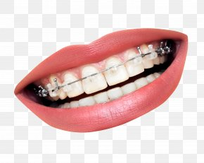 Teeth With Braces - Dental Braces Dentistry Orthodontics Tooth Clear Aligners PNG