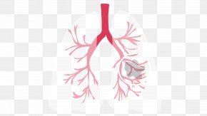 Lungs - Non-small Cell Lung Cancer Cystic Fibrosis PNG